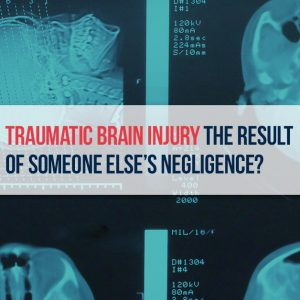 Traumatic Brain Injury Lawyer - McDonaldLawfirm.com